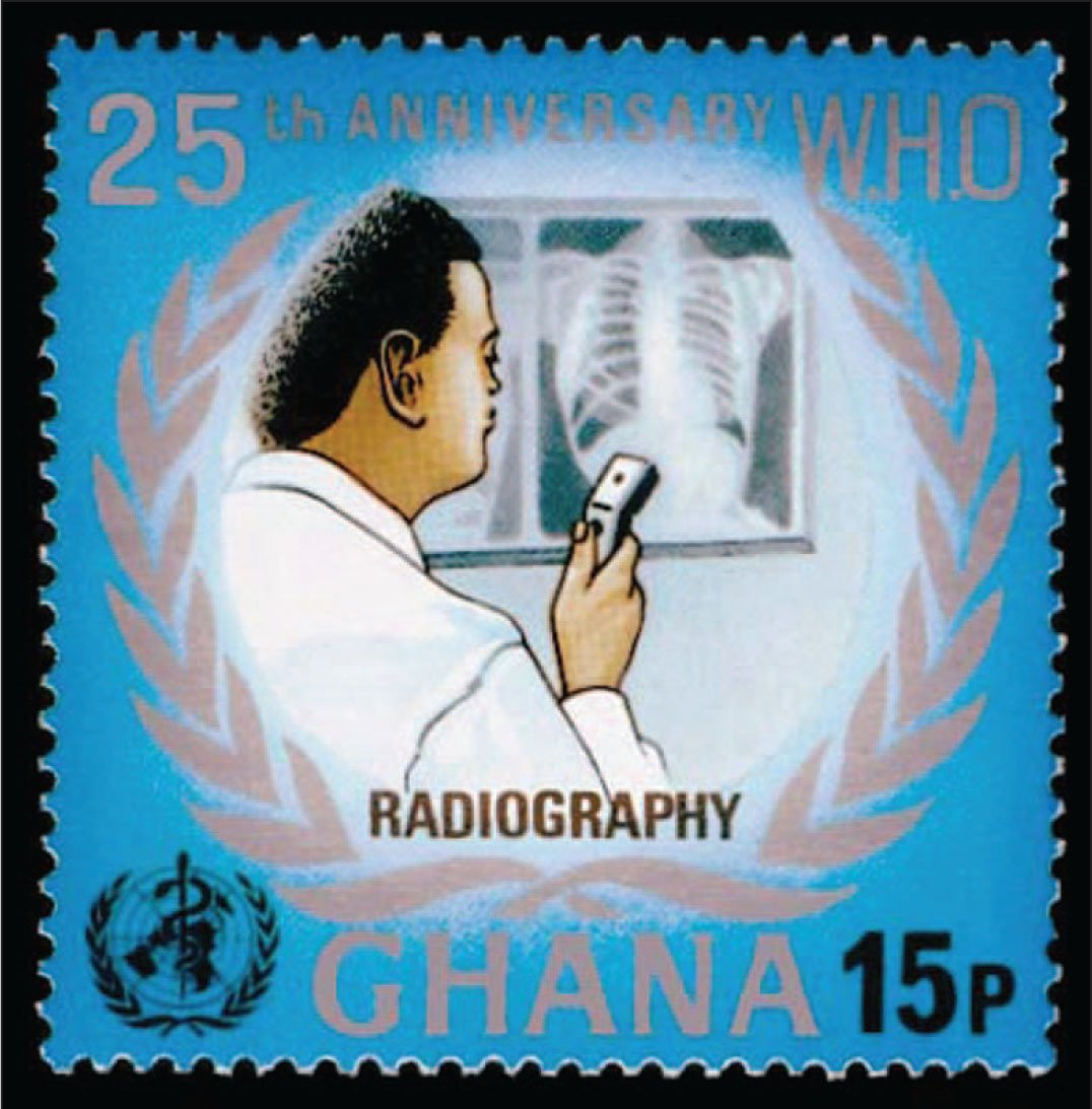 Issued in 1973, This Stamp Honors the 25th Anniversary of the World Health Organization and Shows the Reading of a Chest X-Ray.