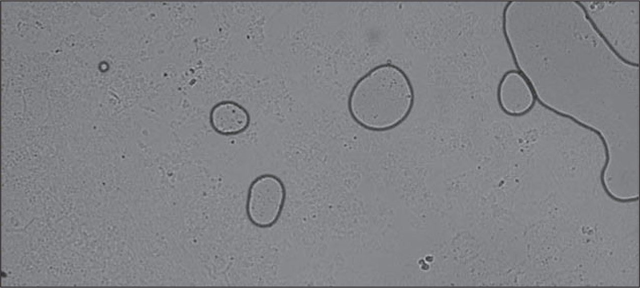 Potassium Hydroxide Preparation Shows Two Pseudoyphae and Budding Yeast, Yielding the Diagnosis.