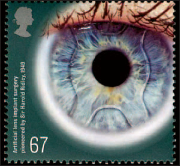 On This 67-Penny Stamp, the Eye Represents the First Cataract Intraocular Lens Implant, Perfected by Sir Harold Ridley (1906–2001) in 1949 at St. Thomas' Hospital, London