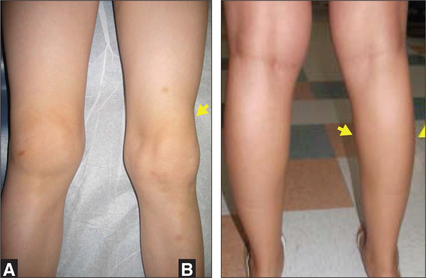 Prolonged limping leads to muscle atrophy. (A) Subtle thigh and (B) calf muscle atrophy are indicated by arrows. Comparing sides for asymmetrical findings is helpful.