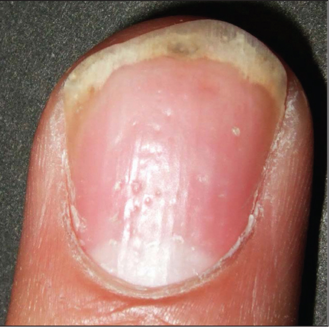 Nail pits in a patient with psoriatic arthritis.Image courtesy of Clara Lin, MD. Reprinted with permission.