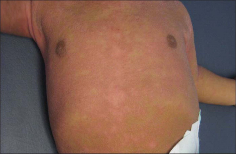 Infant with atopic dermatitis showing typical inflamed plaques and xerosis. Source: Tom W. Reprinted with permission.