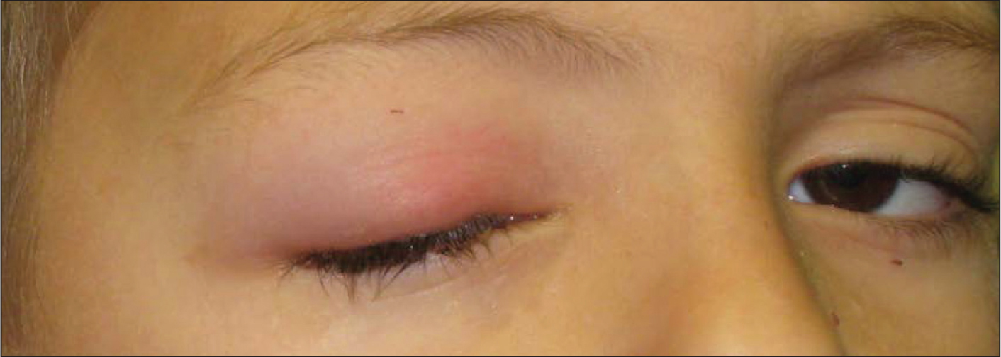 A 7-year-old white boy who has had rhinorrhea for 5 days and a hordeolum on right upper eyelid for 2 days. He was hit by a softball over the right zygoma/lateral orbit 2 days ago as well. His physical examination also reveals a right acute otitis media and right upper eyelid swelling and redness.