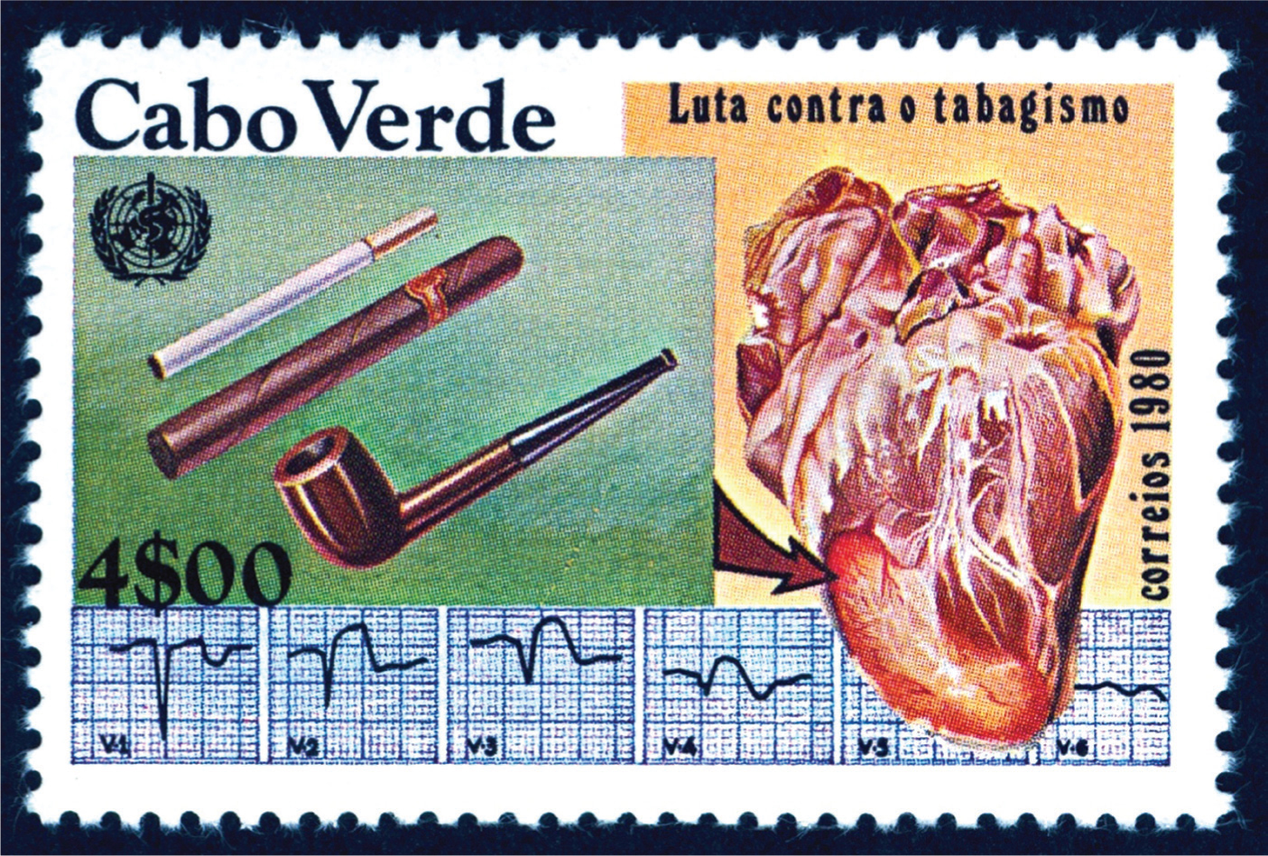 Anti-smoking stamp issued by Cape Verde showing an apical myocardial infarct with its accompanying electrocardiogram with Q waves.Images courtesy of Stanford T. Shulman, MD.