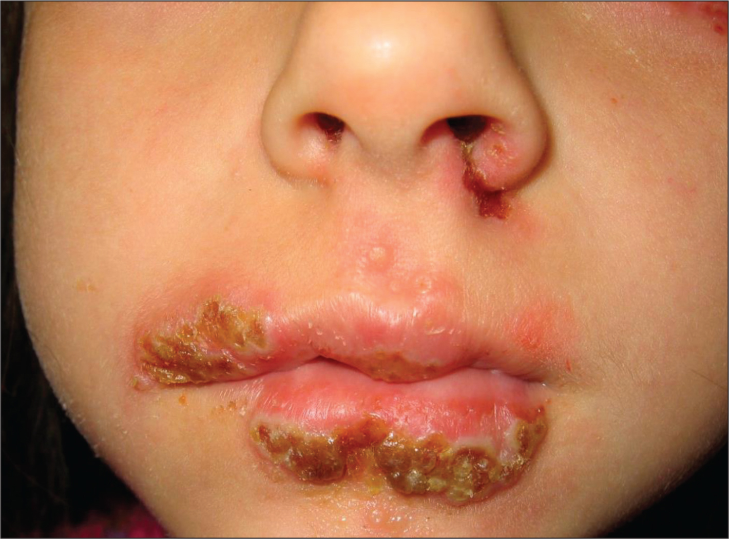 Severe presentation of eczema herpeticum on the face of a 6-year-old white female. It was infected with both herpes simplex and methicillin-resistant Staphylococcus aureus. She required in-patient parenteral antimicrobials for both infections.