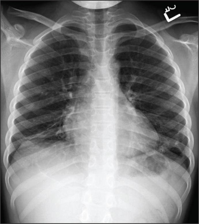 Chest X-ray of patient obtained on follow-up as an outpatient 3 months after the initial presentation. Note the significant clearing of the opacities bilaterally with some residual scarring after therapy.