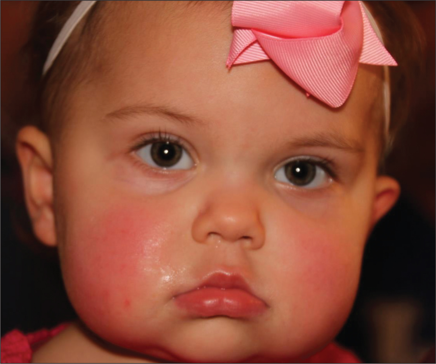 A fully vaccinated 18-month-old child with fever to 103.5°F, anorexia, and crankiness. Does she warrant a complete blood count and blood culture? What if she were not vaccinated?All images courtesy of Stan L. Block, MD, FAAP.