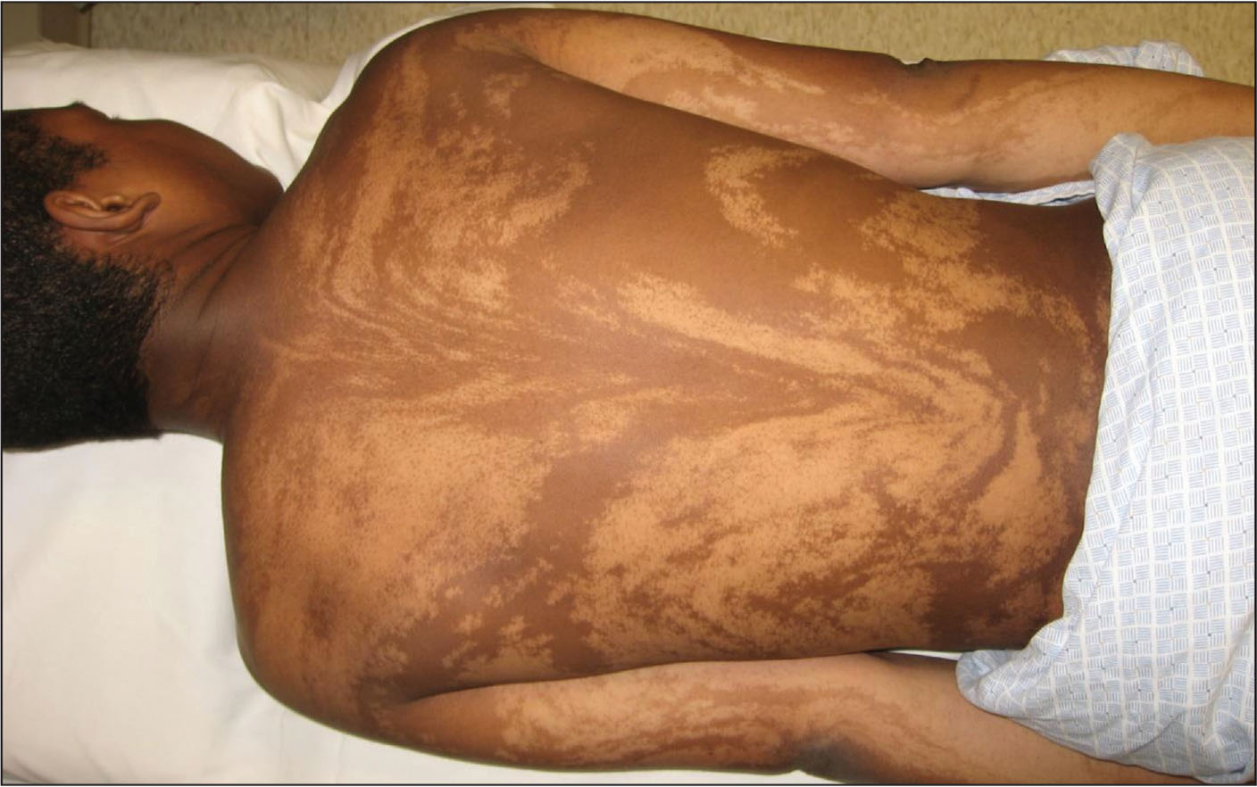 Multiple streaky, hypopigmented skin lesions on a 15-year-old boy with profound cognitive impairment.