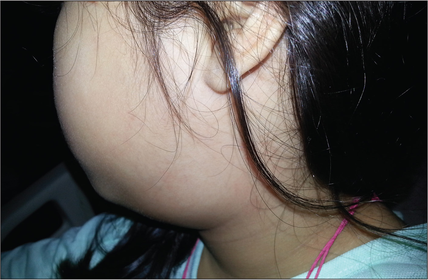 A 6-year-old female with left-sided cervical swelling at the submandibular angle.