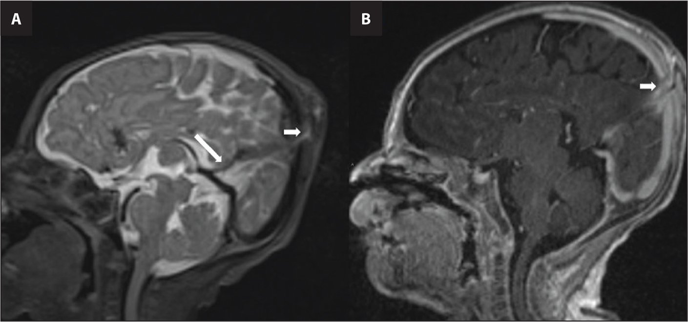 (A) Sagittal T2 and (B) postcontrast T1-weighted images demonstrate an enhancing tract (small white arrows) coursing through a small skull defect connecting the dura mater and the scalp swelling. Also note the persistent falcine sinus (long white arrow in A).