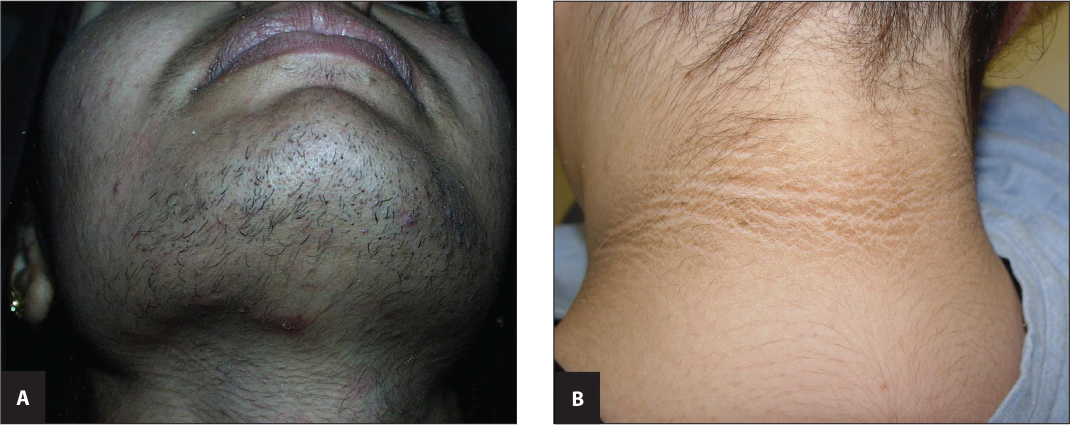 (A) Hirsutism and acne and (B) acanthosis nigricans in women. Courtesy of Dr. Bernard Cohen, Professor of Dermatology and Pediatrics, Johns Hopkins University School of Medicine (used with permission).