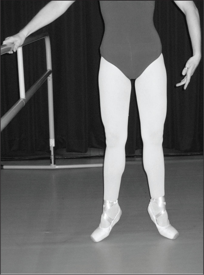 Dancer demonstrating demi-pointe. Courtesy of Jeffrey A. Russell, PhD, AT, Assistant Professor of Athletic Training, and Director, Science and Health in Artistic Performance (SHAPe), Ohio University.