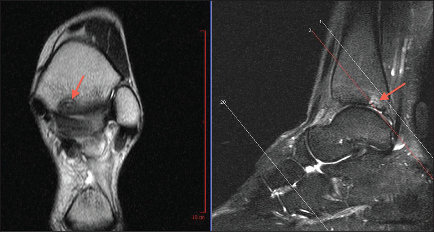 Magnetic resonance image of posterior tibial osteochondral defect.