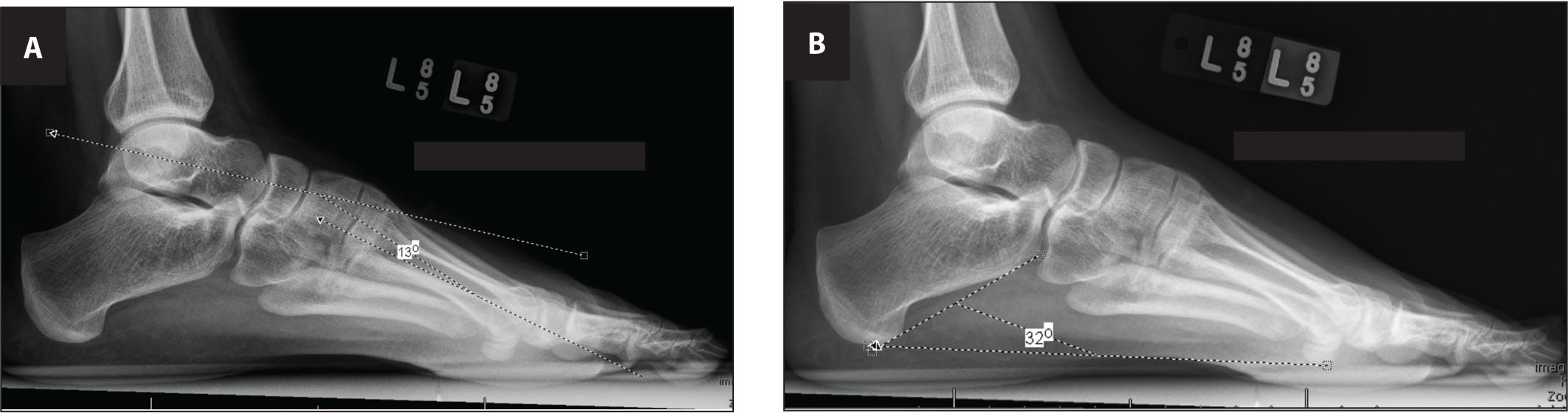(A) Lateral weight-bearing radiograph of the foot showing Meary's angle. (B) Lateral weight-bearing radiograph of the foot showing calcaneal pitch.