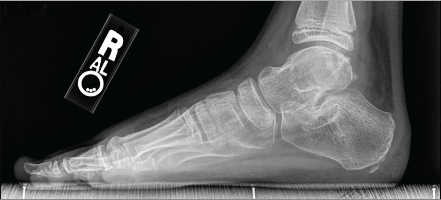 Lateral weight-bearing radiograph showing a normal foot.