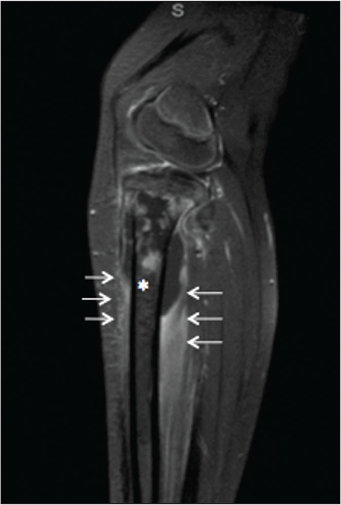Sagittal postcontrast T2-weighted magnetic resonance imaging cut of the tibia showing heterogeneous lesion within the proximal tibia metaphysis (asterisk) and a rim-enhancing lesion in the proximal subperiosteal space (white arrows).