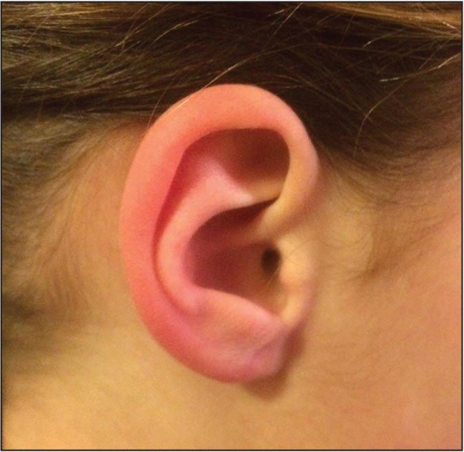 what are red ears a symptom of