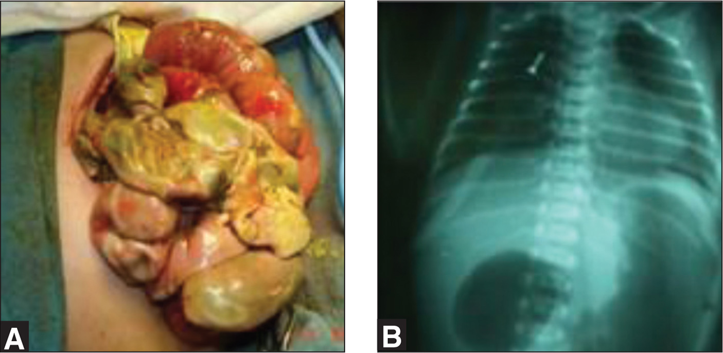 (A) Intestinal perforation secondary to complicated necrotizing enterocolitis. (B) Double bubble image on X-ray.