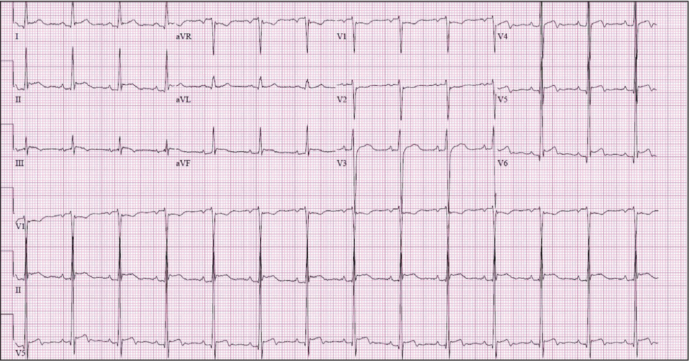 Electrocardiogram characteristic of acute pericarditis with diffuse ST segment elevation.