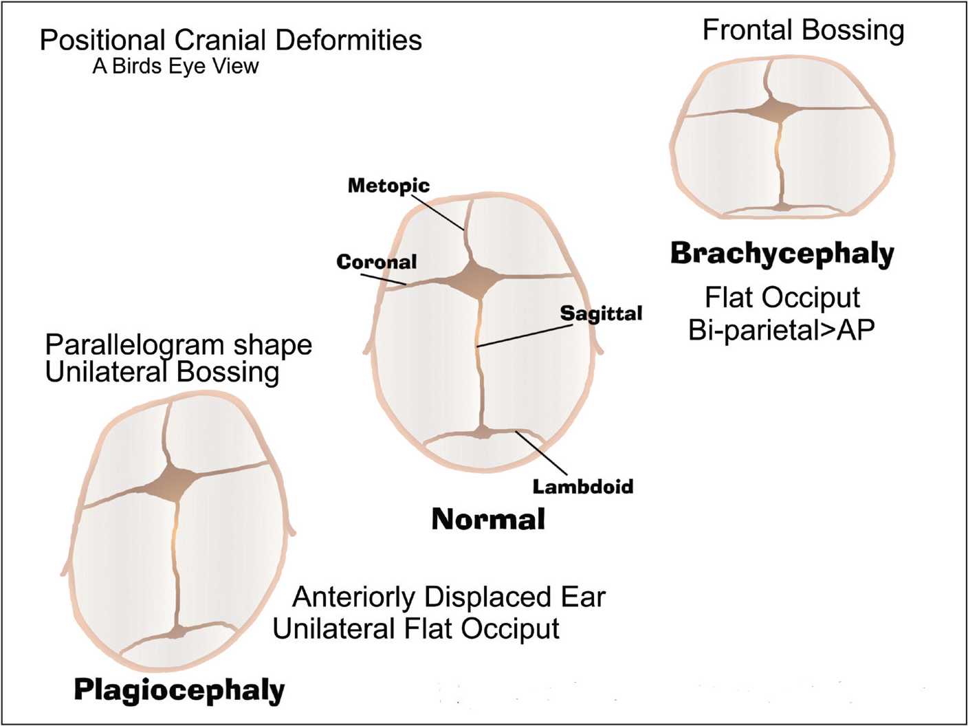 Positional cranial deformities. AP, anterior/posterior. Reprinted from Marshall15 with permission.