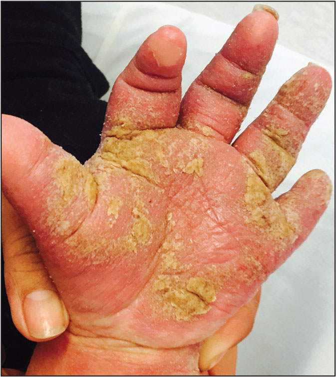 Crusted scabies.