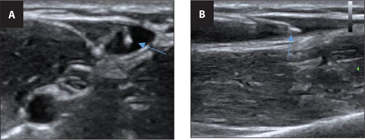Peripheral intravascular (IV) placement. (A) Transverse view of the cross-section of where the IV catheter is going into the vein. (B) Longitudinal view of the IV catheter going into the vein. (Used with permission from Dr. Alexander Prewitt, University of Illinois at Chicago College of Medicine.)