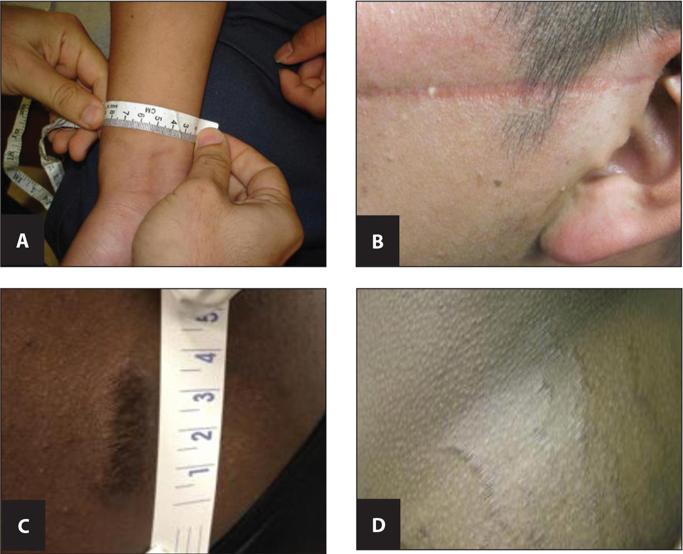 "Examples of an evaluator's impressions of the degree of consistency of physical examination findings with reported mechanism of injury using standard classification provided by the Istanbul Protocol.7 (A) Asylum applicant reported being tied up with a plastic zip tie (classification: ""diagnostic of""). (b) Asylum applicant reported a laceration of the face and ear from a large knife repaired with sutures. (classification: ""highly consistent""). (C) Asylum applicant reported a laceration from being beaten with a stick (classification: ""consistent"". (D) Asylum applicant reported these were stretch marks unrelated to abuse (classification: ""not consistent"")."