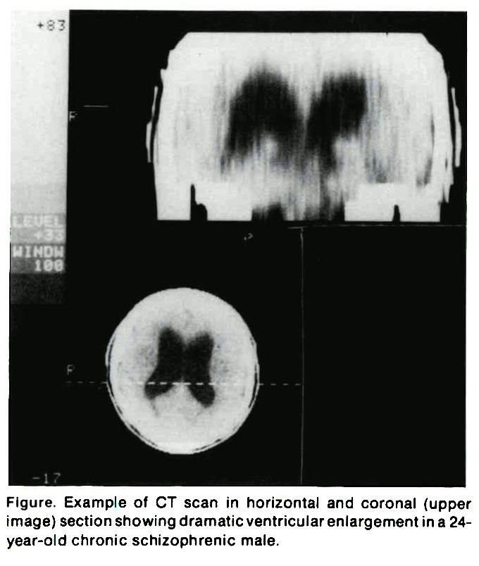 Figure. Example of CT scan in horizontal and coronal (upper image) section showing dramatic ventricular enlargement in a 24year-old chronic schizophrenic male.