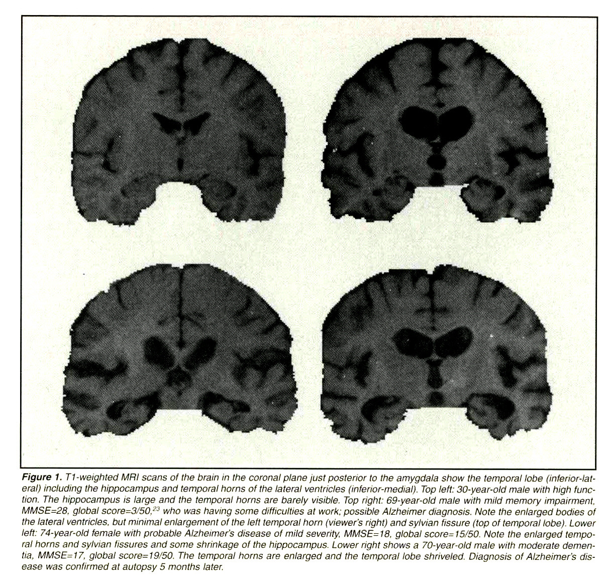 Figure 1. T1 -weighted MRi scans ol the brain in the coronal piane iusi posterior to !he amygdala show the temporal lobe (inferior-lateral) including the hippocampus and temporal horns of trie lateral ventricles (inferior-medial). Top teff: 30-year-old male with high function. The hippocampus is large and the temporal horns are barely visible. Top right: 69-year-old male with mild memory impairment. MMSE=28. global score =3/50. ->y who was having some difficulties at work: possible Aizheimer diagnosis. Note the enlarged bodies of the lateral ventricles, but minimal enlargement of the left temporal horn (viewer's right) and sylvian fissure (top of temporal lobe). Lower leti: 74-year-old female with probable Alzheimer's disease of mild severity. MMSE= 70, global score= 15/50. Note the enlarged temporal horns and sylvian fissures and some shrinkage of the hippocampus. Lower right shows a 70-year-old male with moderate dementia. MMSE=17. global score=T9/50. The temporal horns are enlarged and the temporal lobe shriveled. Diagnosis of Alzheimer's disease was confirmed a! autopsy 5 months later.