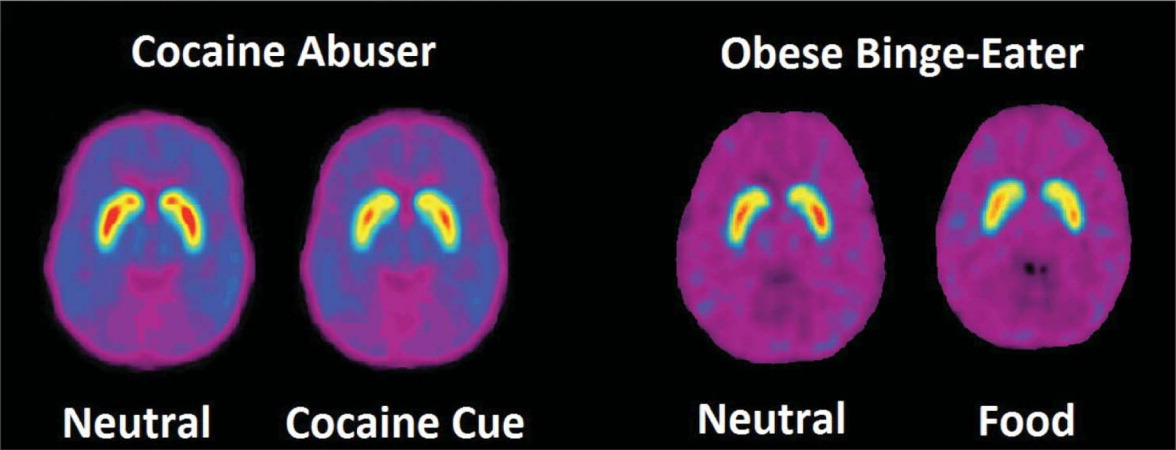 Images of positron emission tomography scans with [11C]raclopride showing that both cocaine and food cues are capable of eliciting similar increases in dopamine in the striatum of chronic cocaine abusers and obese binge-eaters respectively, suggesting that increases in striatal dopamine may commonly subserve conditioned reinforcement related to drugs, food, and perhaps other stimuli in psychiatric disorders. Source: Wang GJ, adapted from Wang GJ, et al. Obesity (Silver Spring). 2011;19(8):1601–1608; and Volkow ND, et al. Bioessays. 2010;32(9):748–755.