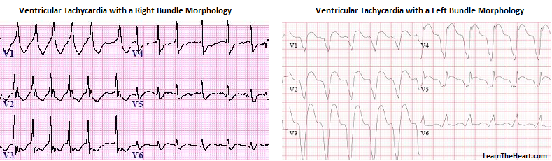Ventricular Tachycardia Vt Ecg Review Criteria And Examples Learntheheart Com