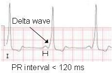 WPW-Delta-Wave-ECG