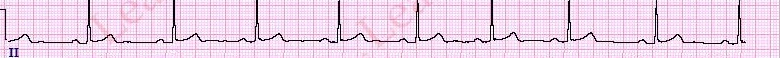 BradycardiaHR-FullStrip1