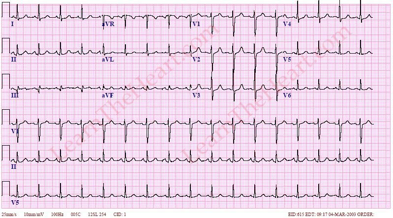 EKG Websites: A Review of the Most Viewed Websites ...