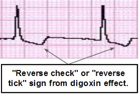 DigoxinReverseCheck1