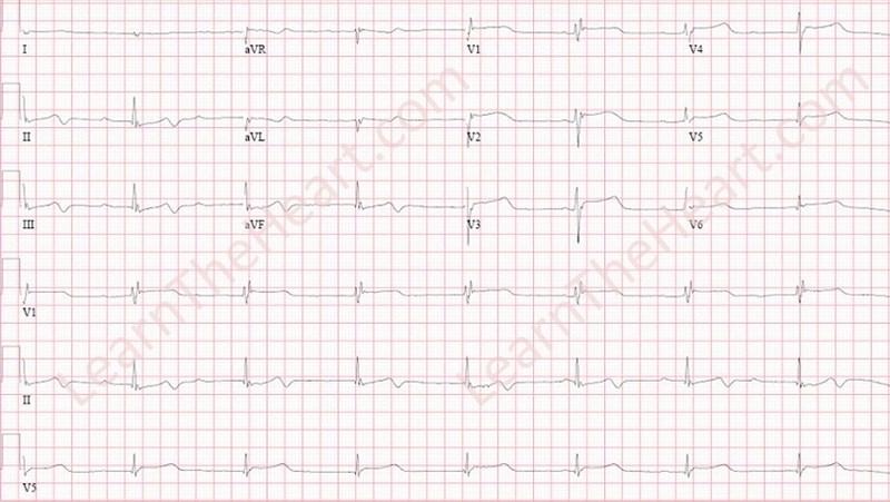 Hypothermia-ECG