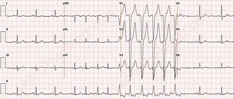 LBBB-RateDependent-Afib