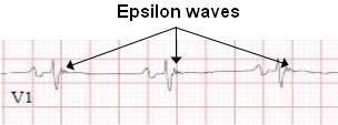 EpsilonWave
