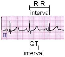 QT Interval on a 12-lead ECG Tracing | LearntheHeart com
