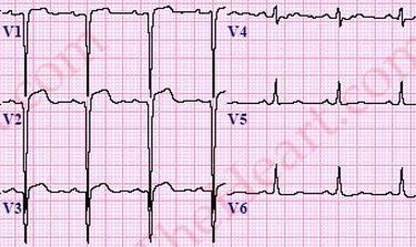 left ventricular aneurysm ecg ile ilgili görsel sonucu