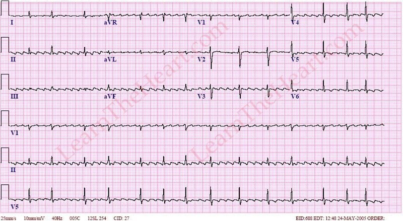 AtrialFlutterVariableConductionECG