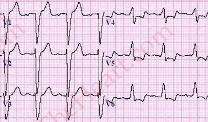 LBBB-PrecordialLeads