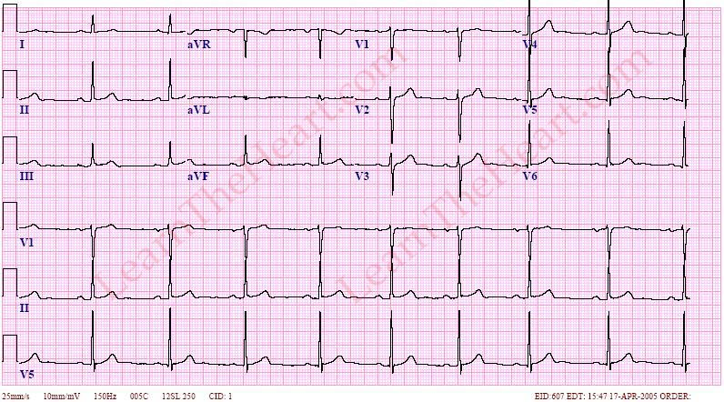 SinusBradycardiaECG2