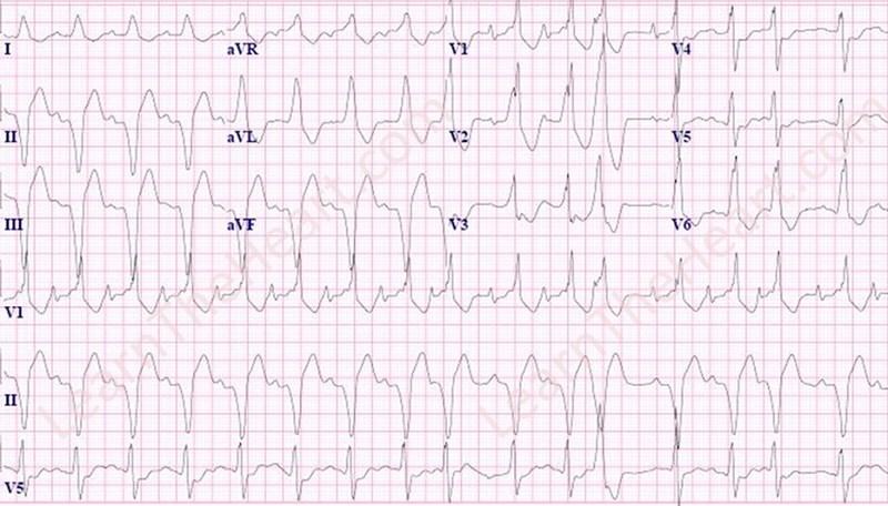 SinusTachycardia-FirstDegreeAVB-RBBB-LAFB-PVC