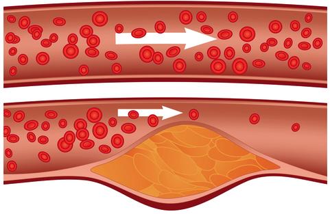 Atheroscleroris-StableAgina