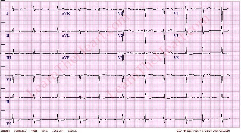 Atrial Fibrillation with normal Ventricular Rate Example 2