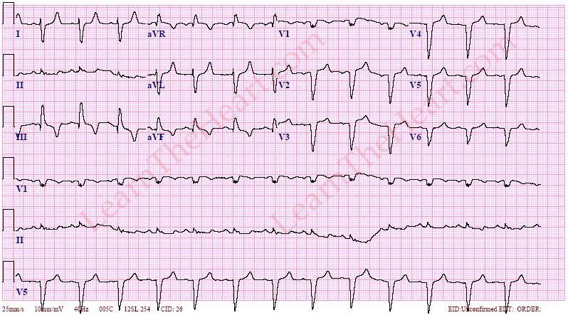 PulmonaryEmbolismECG2