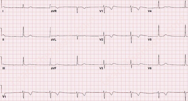 Bradycardia And Hypotension In Stemi David Simchi Levi