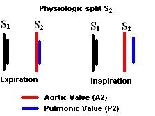 PhysiologicSplitS2