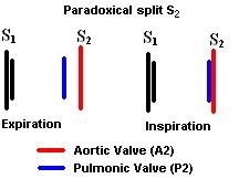 ParadoxicalSplitS2